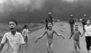 Laser treatment for girl in Vietnam napalm attack