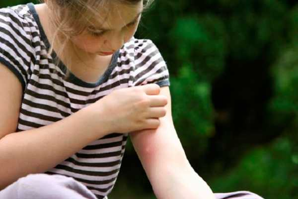34-Home-Remedies-for-Ant-Bites-Swelling-and-Itching1